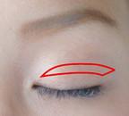 重瞼線に沿った全切開の位置