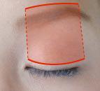 筋膜移植法の位置