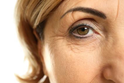 上まぶたのゆるみ(眼瞼下垂)と下まぶたのたるみ(目袋)